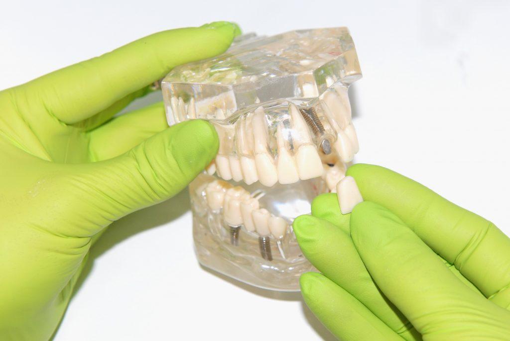 Implanty - Świdnica - Implanty zębów Cennik | nClinic