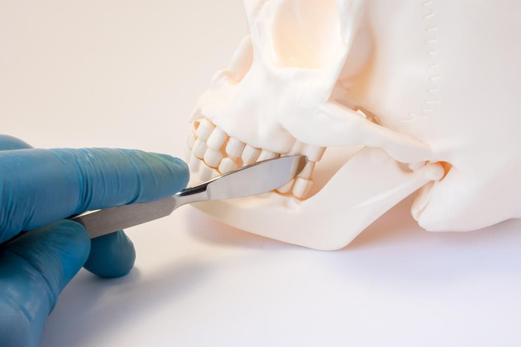 Leczenie ortodontyczno-chirurgiczne | nClinic